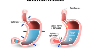 Can Omeprazole Cause Gastroparesis