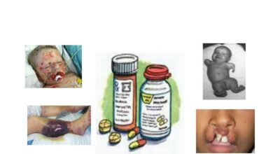 Types Of Adverse Drug Reaction (ADR)