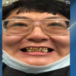 Booking photo of Anthony Wong, who was arrested for violating probation and having over 1,000 fake oxycodone pills (Photo: San Luis Obispo County Sheriff's Office)