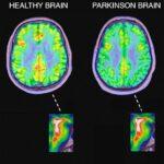 Drug-induced Parkinsonism
